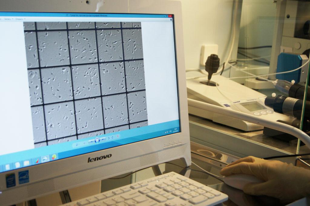 muzhskoe besplodie 1024x681 - Лечение мужского бесплодия