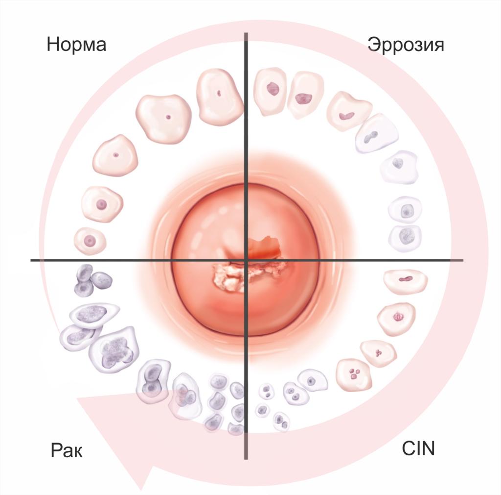 Patologiya shejki 1 1024x1010 - Лечение шейки матки: аргоноплазменная терапия